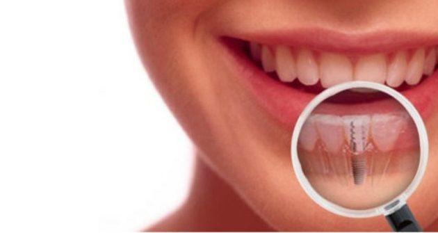 zobni vsadek