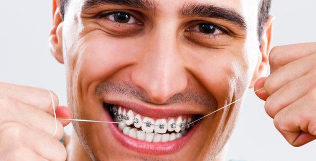 nitkanje ortodontski aparat