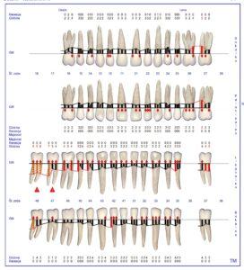 Slika 1: Parodontalne meritve obzobnih žepov