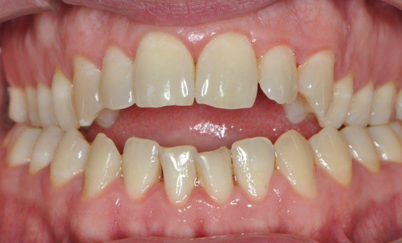 Stanje po končanem parodontalnem zdravljeneju z zdravo čvrsto dlesnijo