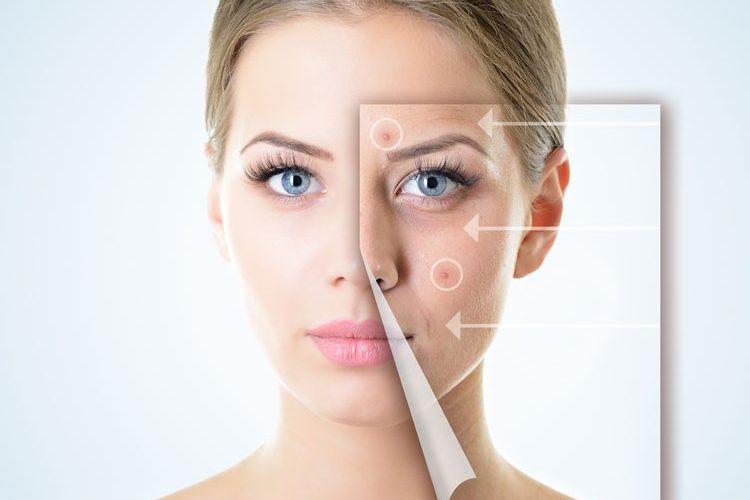 Zdravljenje aken_laser