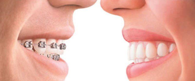 ortodontski aparat